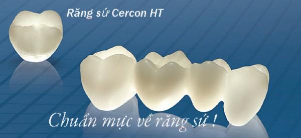 làm răng sứ bằng cercon