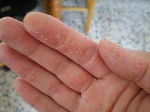 nguyên nhân gây bệnh chàm khô 1